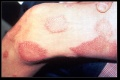 Leprosy thigh demarcated cutaneous lesions.jpg